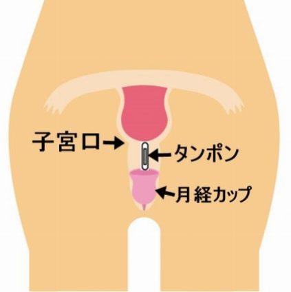 月経カップ 使い方